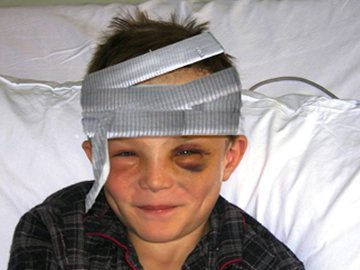 Eye Injuries in Children