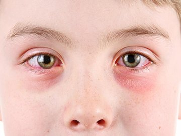 Causes and Treatment of Eye Allergy