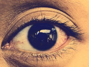 Causes And Types Of Eye Infections