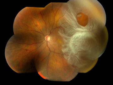 10 Popular Facts About Retinal Detachment That Are Actually False