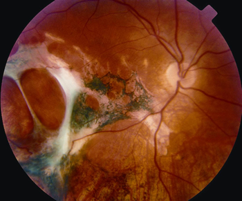 retinadisorders